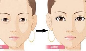 资讯生活上海玫瑰:从你的眼睑状态看你适合什么样的双眼皮术式!